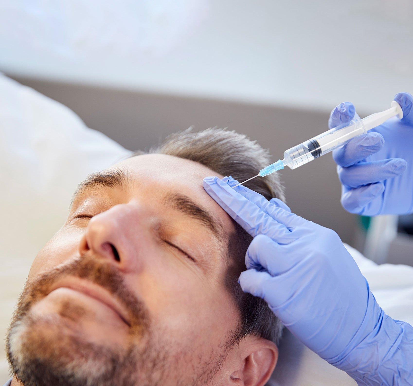 mezoterapia skóry głowy rzeszó