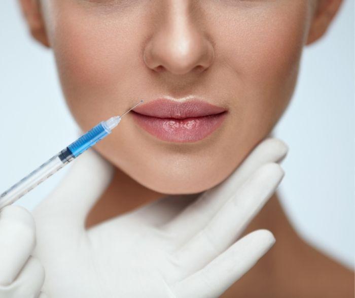 korekta ust kwasem hialuronowym
